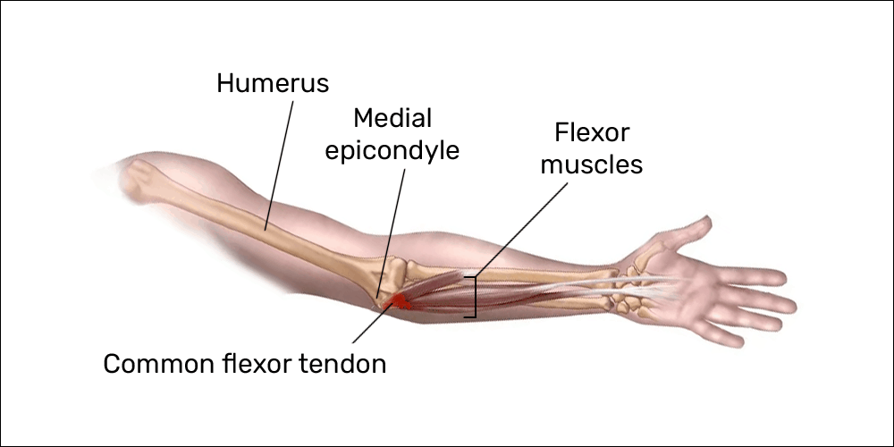 arm tendons diagram medial epicondylosis your console triggers may cause elbow pain  medial epicondylosis your console