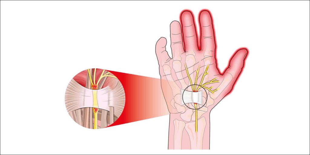 median nerve compression
