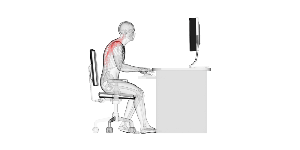 poor posture is a common mechanism for upper crossed syndrome