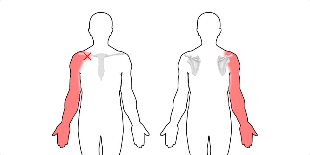 arms affected by thoracic outlet syndrome